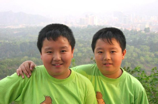 จากหนูน้อยฝาเเฝดพุงพลุ้ยในอดีต สู่ นศ.หนุ่มคู่แฝดจีน ที่หล่อที่สุดในปี 2557