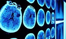 ระวัง! เซลล์มะเร็งอาจแพร่กระจายทั่วร่างกาย แม้จะไม่พบก้อนมะเร็ง