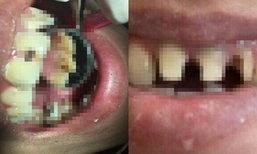 ฟันหน้าผุ 10 ปี เพิ่งรักษา อุทาหรณ์ของคนกลัวหมอฟัน