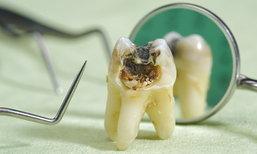"""4 สัญญาณอันตราย ได้เวลารักษา """"รากฟัน"""""""