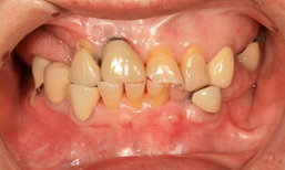 """แปรงฟันไม่ถูกวิธี เสี่ยง """"เหงือกร่น"""""""