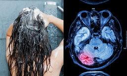 จริงหรือไม่? อาบน้ำผิดวิธี เสี่ยงเส้นเลือดในสมองแตกในห้องน้ำ