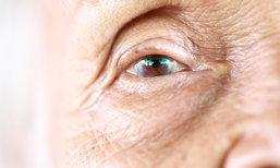 """มองเห็นไม่ชัด สัญญาณอันตราย 5 โรค """"ตา"""" ที่ผู้สูงอายุควรระวัง"""