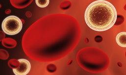 ติดเชื้อในกระแสเลือด คืออะไร? อันตรายแค่ไหน?