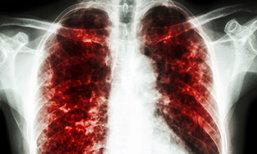 """7 พฤติกรรมเสี่ยง """"วัณโรค"""" โรคเก่าแต่ยังระบาดไม่หยุด"""