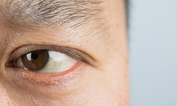 """3 วิธีง่ายๆ เช็ค """"ต้อหิน"""" รู้ตัวก่อนเสี่ยงตาบอดถาวร"""