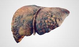 อันตราย! อาหารเสริมลดความอ้วน เสี่ยงตับพัง-เสียชีวิต
