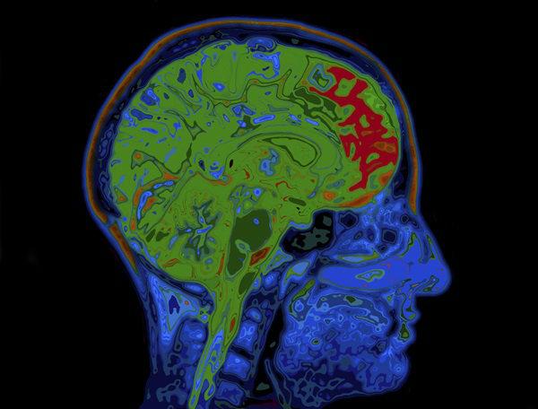 ผลการค้นหารูปภาพสำหรับ วิธีป้องกันสมองเสื่อมง่าย ๆ ทำงานยุ่งเข้าไว้ ช่วยได้ดีเลย !
