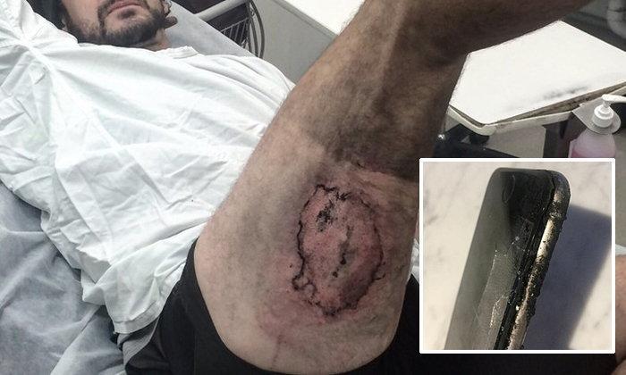 หนุ่มนักปั่นซวยถูก iPhone ไหม้ระหว่างปั่นจักรยานร้ายแรงถึงระดับ 3