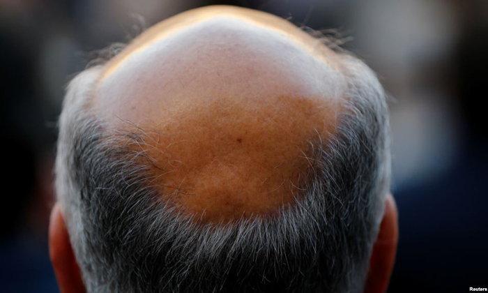 นักวิจัยพบ 'ศีรษะล้านก่อนวัย' สัมพันธ์กับ 'ส่วนสูง' และความเสี่ยง 'มะเร็งต่อมลูกหมาก'!