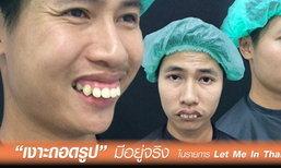 เงาะถอดรูปมีอยู่จริง ในรายการ Let Me In Thailand 2 สู่หนุ่มหล่อบาดใจสาว