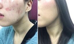 เทคนิคการแต่งหน้าปิดรอยฟกช้ำขั้นเทพ! ของนักมวยปล้ำสาวชาวญี่ปุ่น