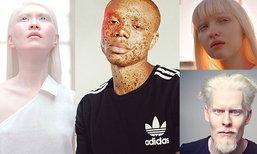 """12  มนุษย์ ผู้มี """"สีผิวโดดเด่น"""" และ """"หน้าตาอันเป็นเอกลักษณ์"""""""