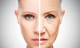 รู้ไว้ก่อนตัดสินใจ ใครเสี่ยง ห้ามฉีด Botox