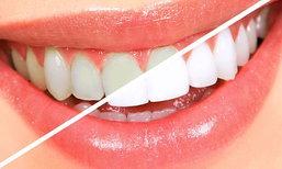 เคล็ดลับฟันขาวฉบับทำเองแบบด่วนๆ