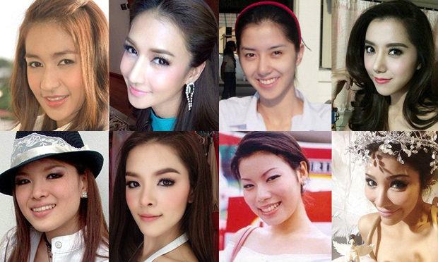 10 อันดับดาราสาวจมูก (ศัลยกรรม) แล้วสวย  เปรี้ยวกว่าเดิม