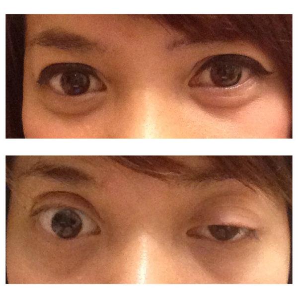 ประสบการณ์จริง หนังตาตกผลข้างเคียงของการฉีดโบทอกซ์