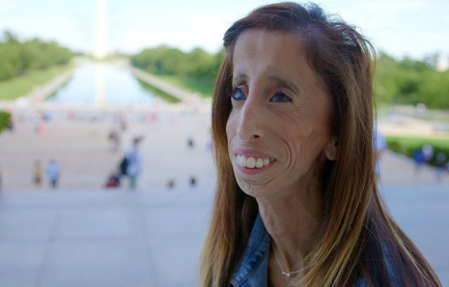 """สาวพิการใจเเกร่ง สู้คนกลั่นแกล้ง ล้อเป็น """"ผู้หญิงน่าเกลียดที่สุดในโลก"""""""