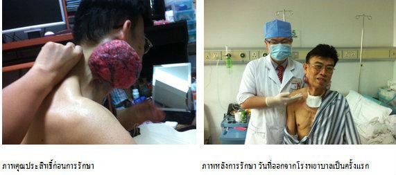 ผู้ป่วยมะเร็งชาวไทย ร่วมแชร์ประสบการณ์การไปรักษา ณ โรงพยาบาลมะเร็งสมัยใหม่กว่างโจว