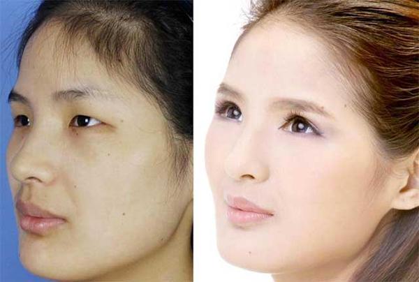 รวมภาพสาวจีน ก่อน หลัง สวย ศัลยกรรม สุดทึ่ง!