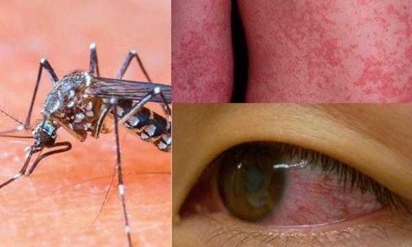ไวรัส Zika ติดต่อทางยุง อาการคล้ายไข้เลือดออก